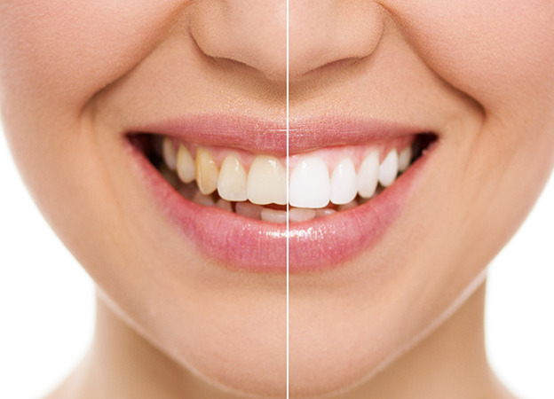 Zoom Teeth Whitening - The Hope Dental Care Centre
