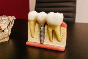 The Hope Dental Care Centre 5 things you should know before getting dental implants